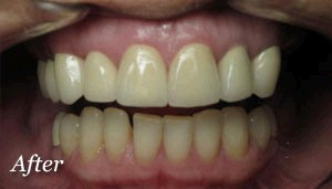 Implants-and-Crowns-Northglenn_02_a