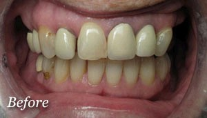 Implants-and-Crowns-Northglenn_02_b