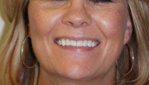 Porcelain-Veneers-Northglenn-03-after-e1342591840831-300x171