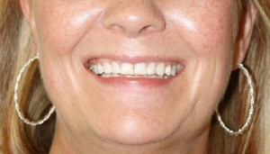 Porcelain-Veneers-Northglenn-03-before-e1342591781423-300x171