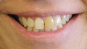 Veneers-and-Crowns-Denver-Before-300x171