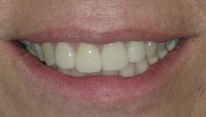Veneers-and-Crowns-Denver-after-300x171